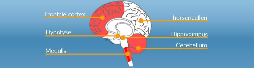 korsakov hersenen